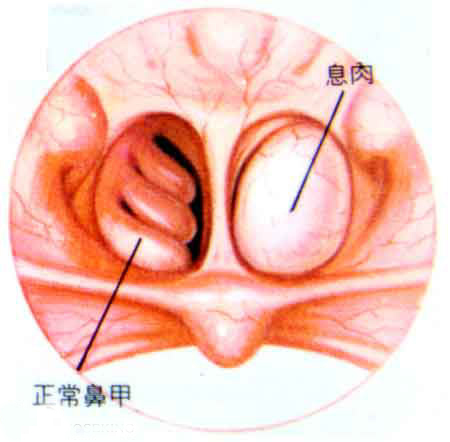 鼻子里面的结构图